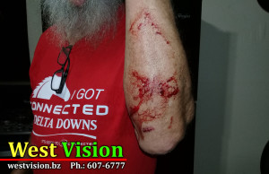 Retiree attacked