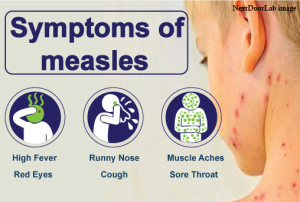 Measles case reported in Guatemala