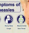 measles_sm